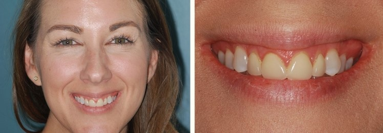 Immediate Gummy Smile Makeover before & after